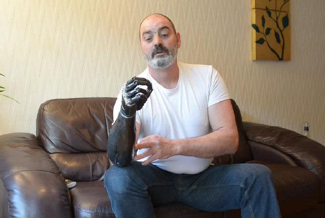 Bebionic3: La mano bionica più avanzata al mondo
