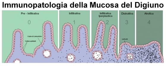 Immunopatologia della mucosa intestinale