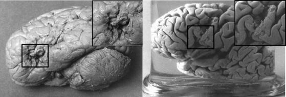 I cervelli di Tan (a destra) e Lelo (a sinistra).