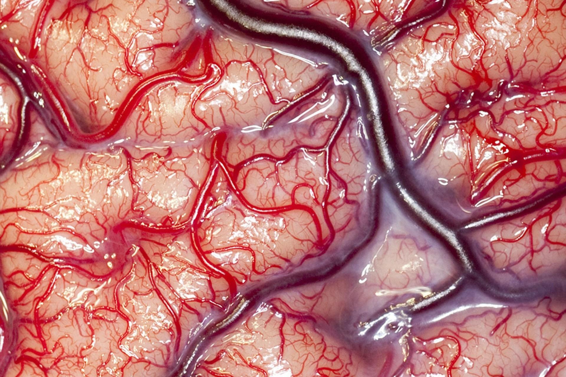 Parabiosi e Neurogenesi: cambiare l'età del cervello