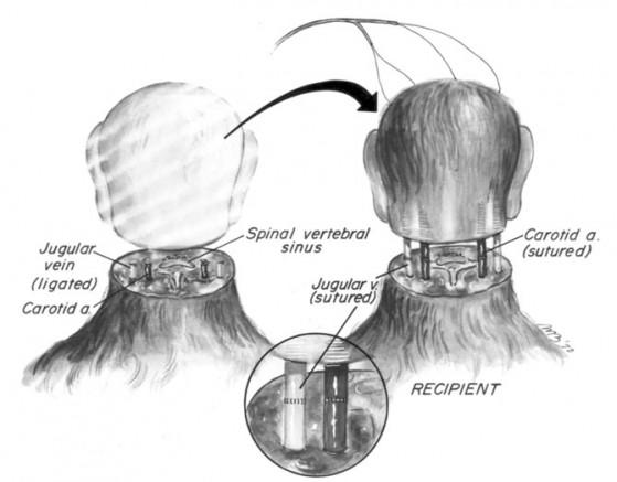 schema di trapianto di testa di scimmia