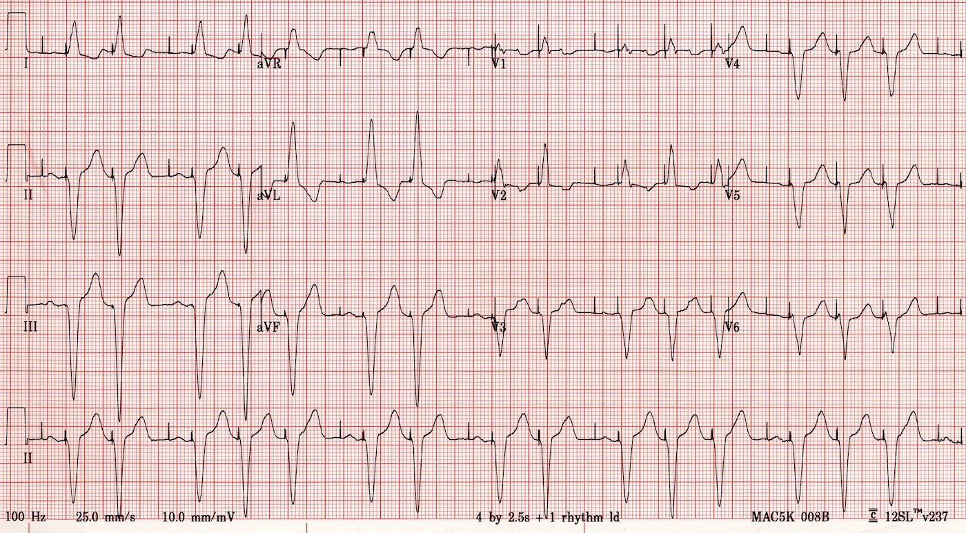 ECG: Come funziona l'elettrocardiogramma
