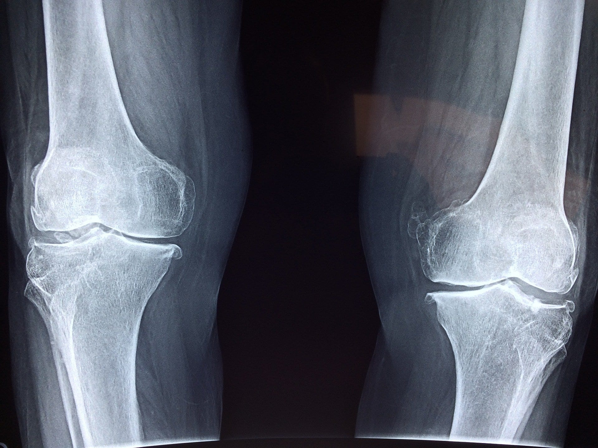 ossa ai raggi x