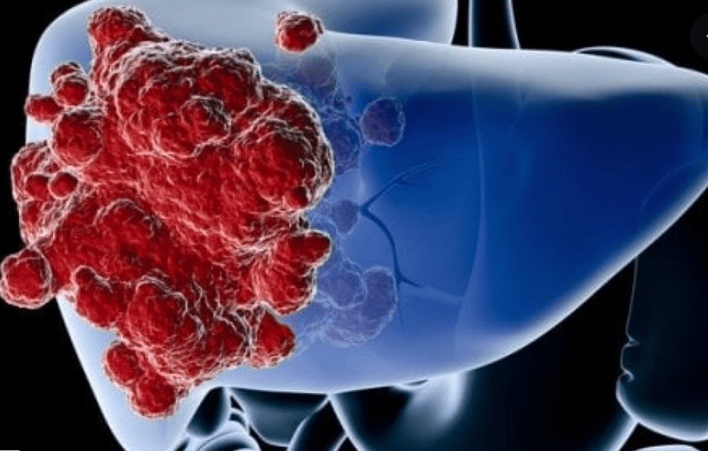 Cancro del fegato: grazie agli ologrammi ablazione più rapida e sicura