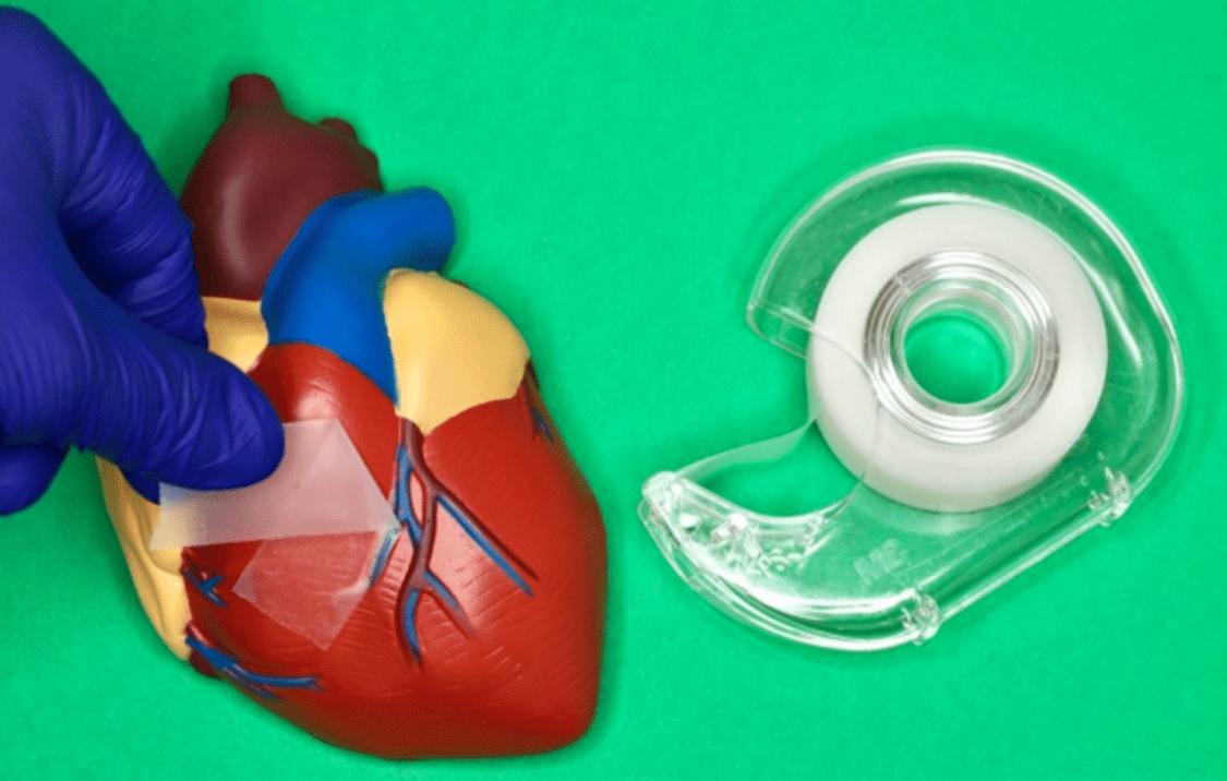 Scotch per chirurghi: un adesivo rimovibile per facilitare la chiusura delle ferite interne