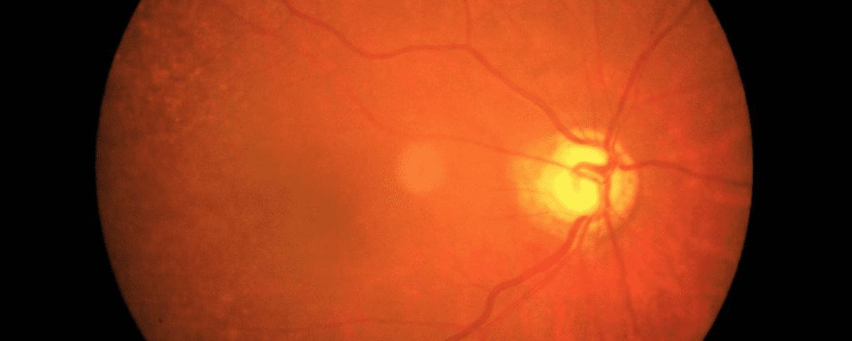 Glaucoma: rigenerate cellule del nervo ottico in laboratorio